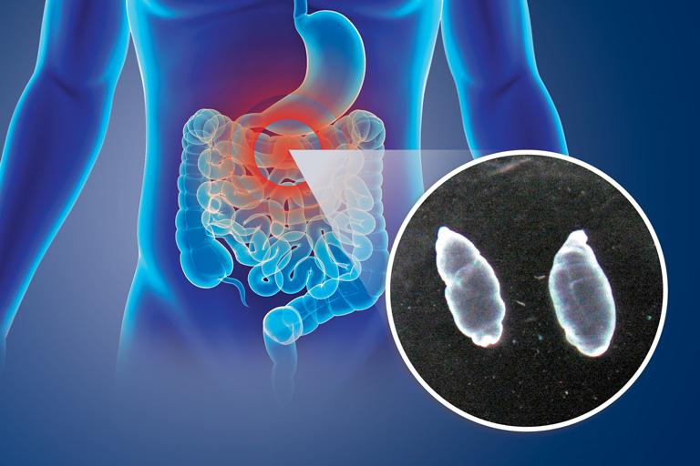 En la fase larvaria del parásito Taenia crassiceps, éste libera ciertas sustancias que le permiten defenderse de la respuesta inflamatoria que el sistema inmune utiliza para eliminarlo.