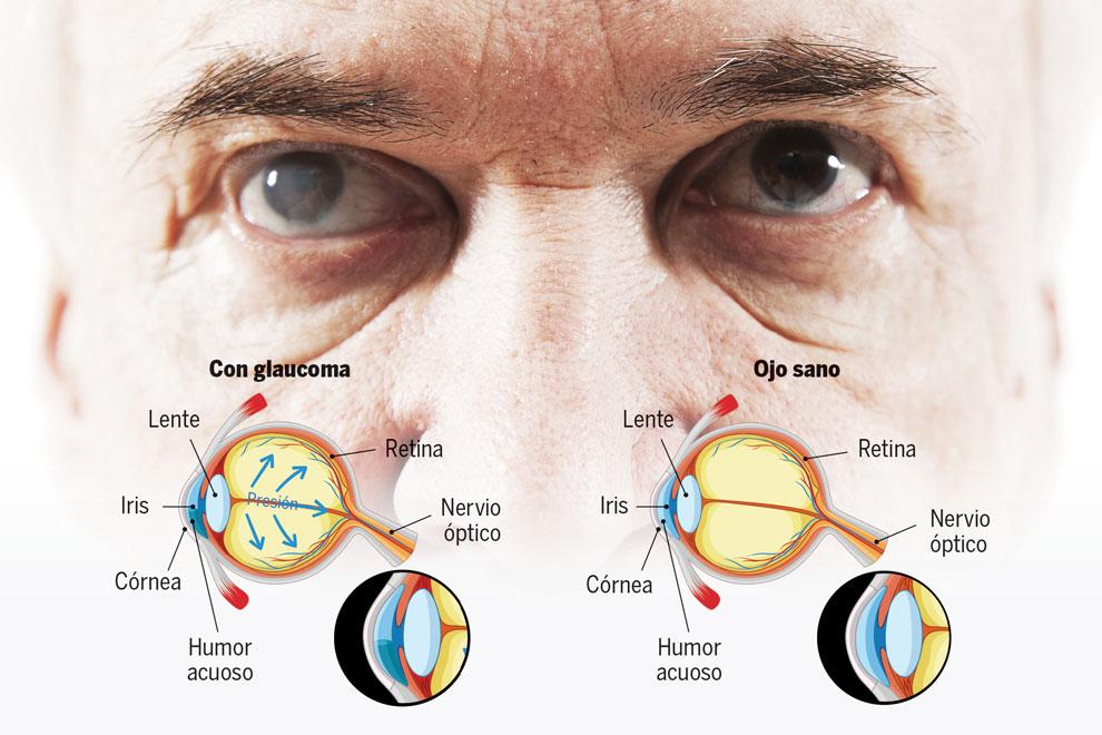 190314-Aca1-f1-Glaucoma