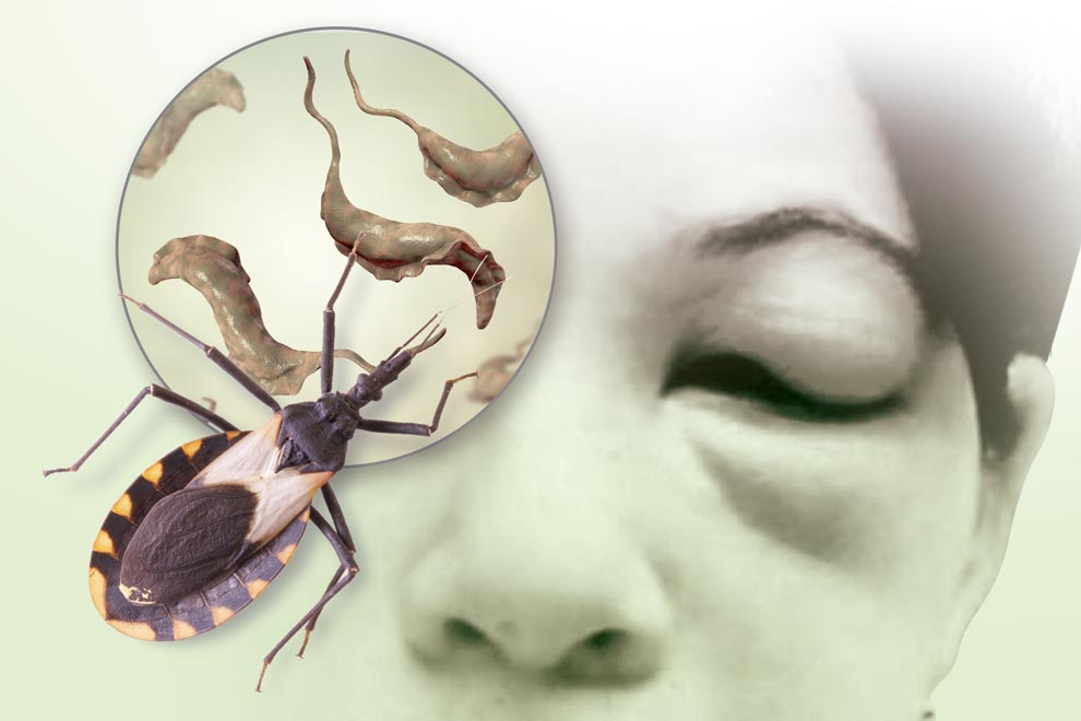 La enfermedad de Chagas, silenciosa y potencialmente mortal - Gaceta UNAM