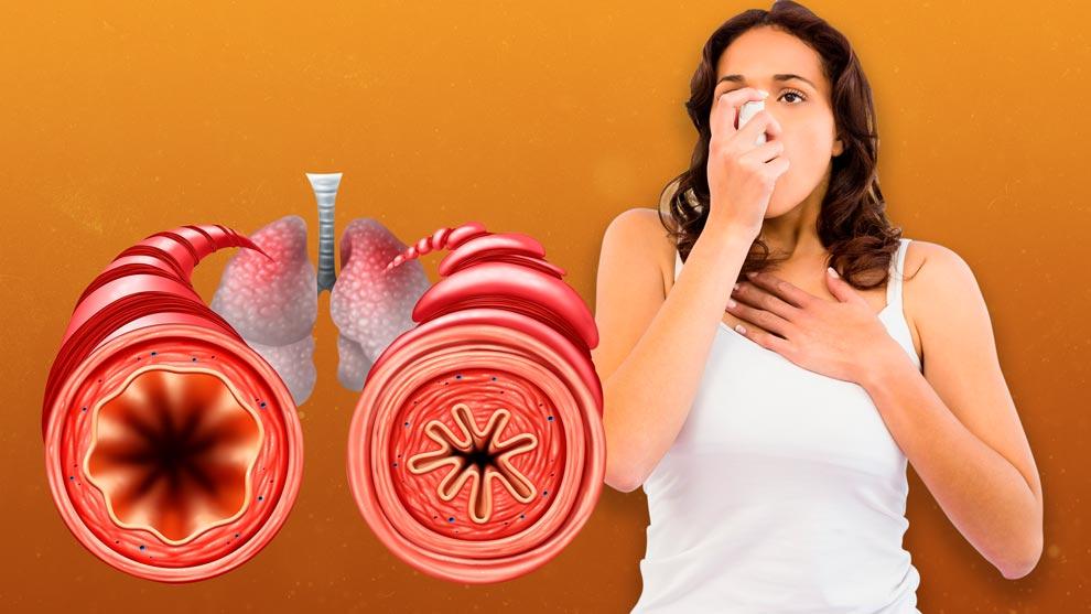 Quienes sufren este mal presentan dificultades para meter aire a los pulmones, pero sobre todo para exhalarlo, esto es lo que proporciona las caracter�sticas cl�nicas espec�ficas de la afecci�n.